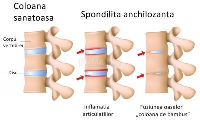dureri articulare cu spondilită anchilozantă